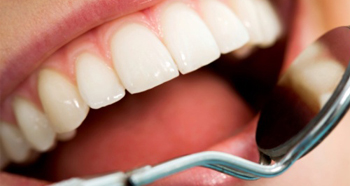 Dental-prophylaxis3